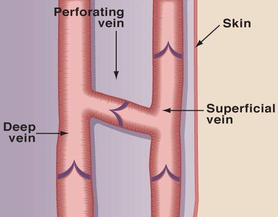 perforating-vein-anatomy-illustration-e1447346095179