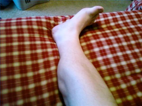 Nocturnal-Leg-Cramp